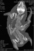 FIGURE 2. Dorsoplanar computed tomography image of conjoined fetal twins in a harbor seal (Phoca vitulina) from San Juan County, Washington, USA. The arrow points to the fusion of the spines.