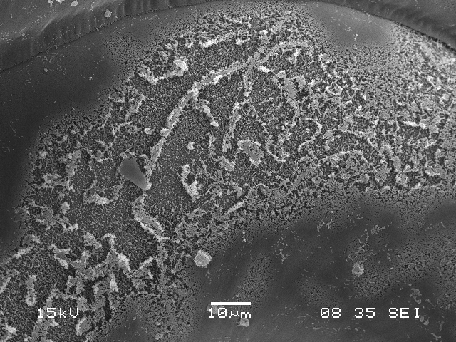 An image from a scanning electron microscope of dissolution on a pteropod shell. (Credit: NOAA)